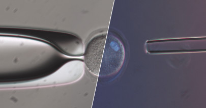 True-to-Life - Olympus IVF Solutions